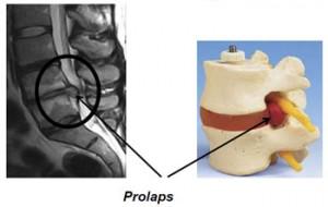 prolaps